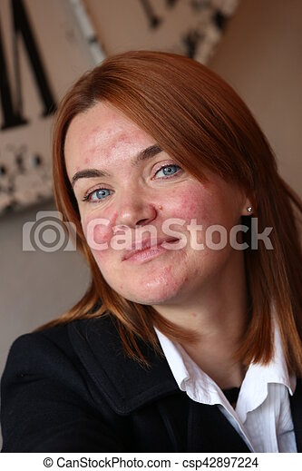 Red haired womanwith acne - csp42897224