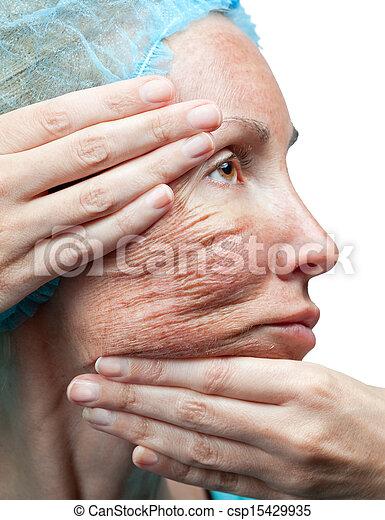 chimique peau peeling