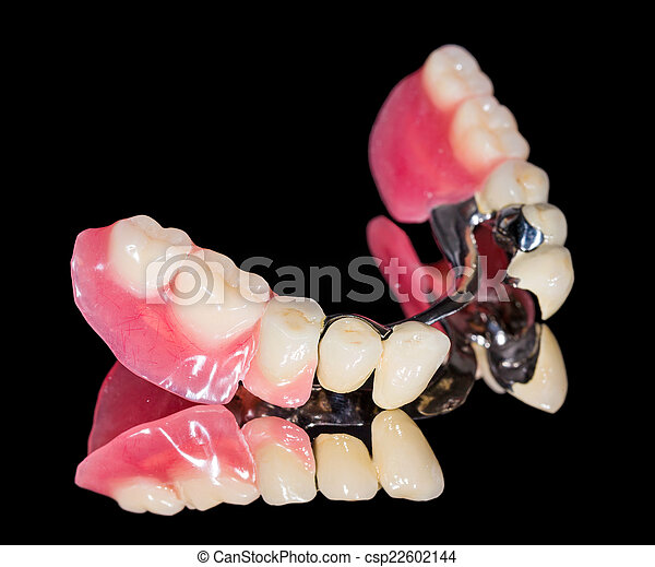 Removable dental prosthesis - csp22602144