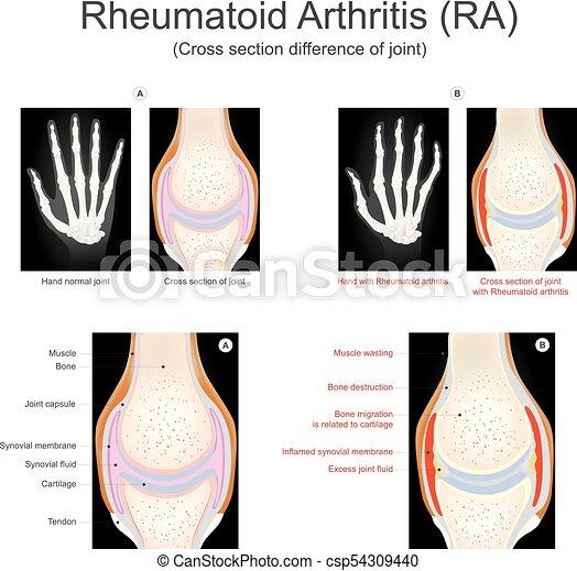 Rheumatoid Arthritis. - csp54309440