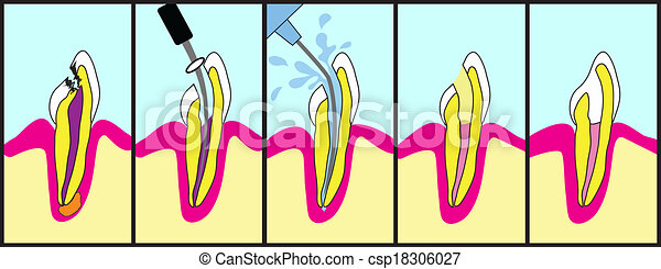 Root Canal Treatment - csp18306027