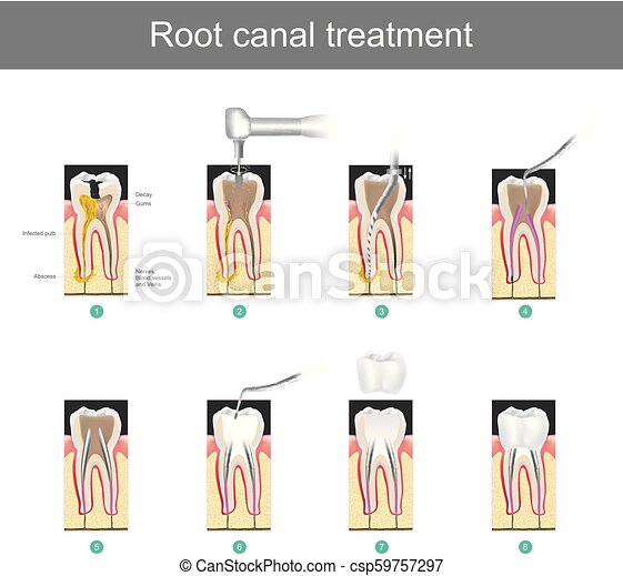 Root canal treatment. How to treat our teeth after the tooth is damaged. or severe caries as causes infection or inflammation - csp59757297