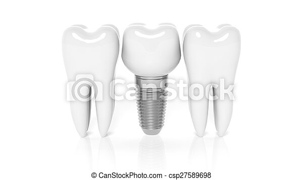 Row of teeth with dental implant isolated on white background - csp27589698