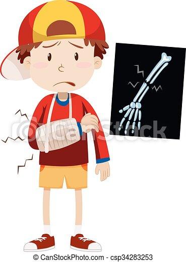 sad boy with broken arm rh canstockphoto com person with a broken arm clipart girl with broken arm clipart