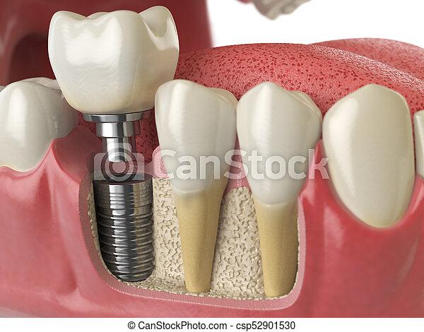 Sano, dental, diente, anatomía, dientes humanos, implante, denturra ...