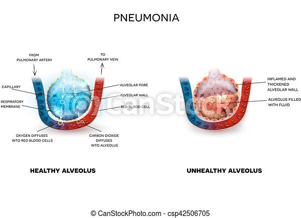 Neumonía y alveolo saludable - csp42506705