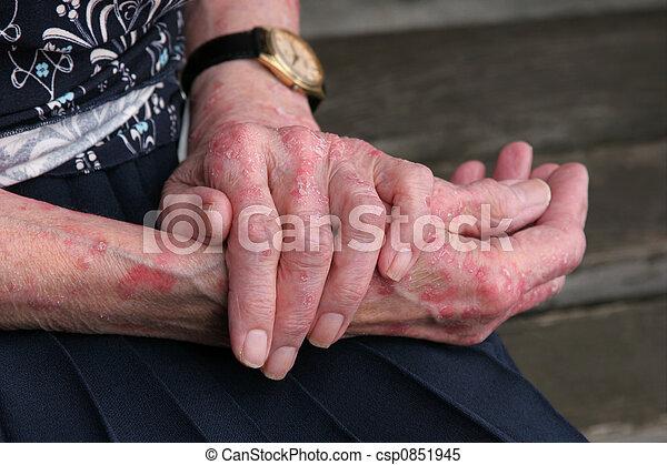 sceriosis, choroba, skóra - csp0851945
