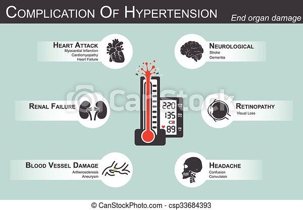Komplikation von Hypertension(Heart attack : myocardial infarction , cardiomyopathy )(Brain : Schlaganfall , Dementia )( visueller Verlust )( Nierenversagen)( Artherosclerosis , Aneurysm ) endorganschäden - csp33684393