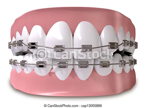 Zähne mit Zahnspange in der Nähe - csp13055889