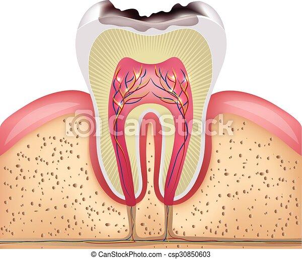La sección de dientes cruzados con caries dentales - csp30850603