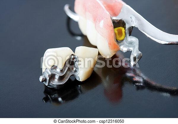sein, entfernt, series., fehlend, ersetzt, -, ihm, prothese, teil, durch, systeme, pacient, z�hne, scheletal, festklemmen, besondere, buechse - csp12316050