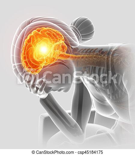 Una ilustración 3D de mujeres con dolor de cabeza - csp45184175
