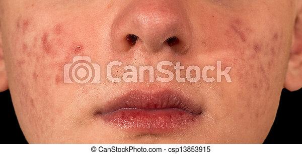 Severe Acne - csp13853915