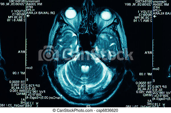 sharp ct scan of the human brain - csp6836620