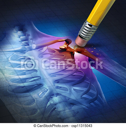 Shoulder Pain Relief - csp11315043