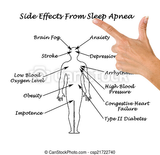 Sife Effects From Sleep Apnea - csp21722740