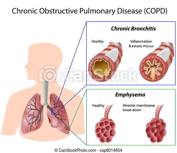 sjukdom, lunga, eps8 - csp8014654