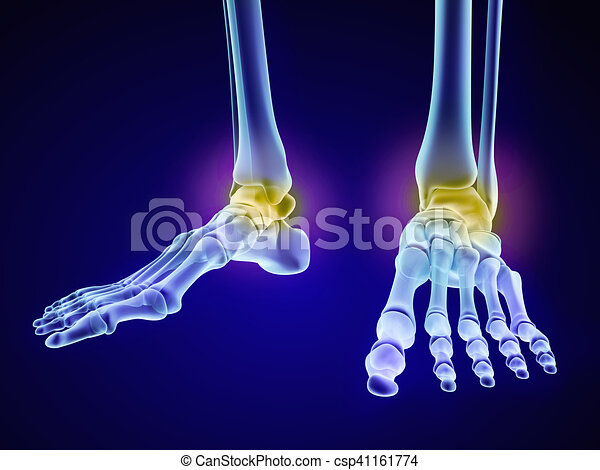 Skeletal Foot Injuryd Talus Bone Xray View Medically Stock