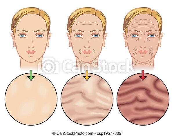 skin aging - csp19577309