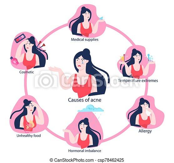 skin., infographics., jeune, acné, causes, bouton, femme - csp78462425