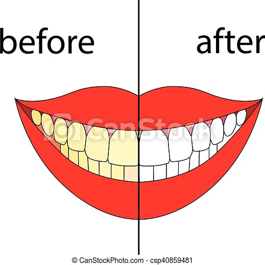 smiling before after vector teeth before and after on withe