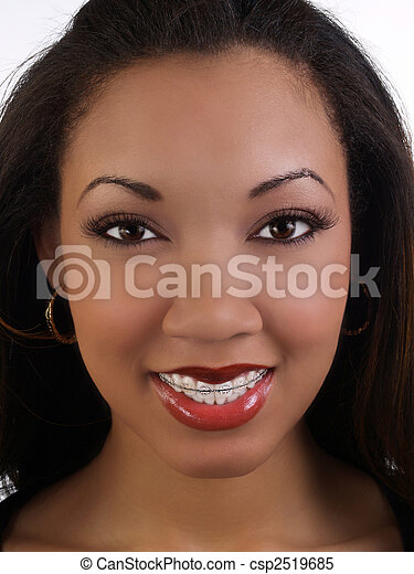Smiling young black woman with braces upper teeth - csp2519685