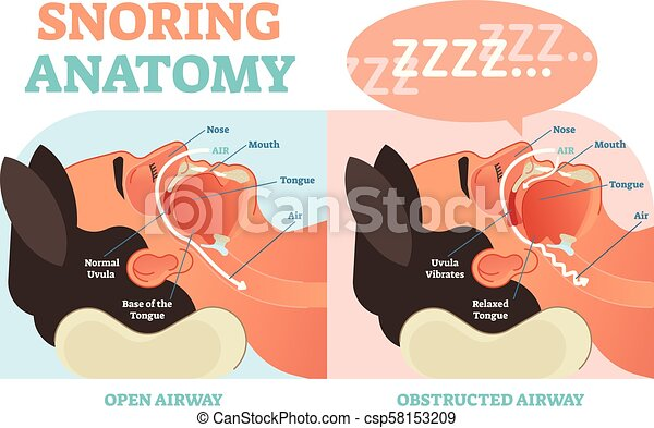 Snoring anatomy medical vector diagram with air page. on nose shapes, nose cuffs, nose bone, nose cartilage, nose ulcers, nose smelling, nose cavity, nose anatomy, nose structure, nose types, nose piercing, nose rings, nose drawing, nose sketch, nose infection symptoms, nose breathing, nose and throat, nose jokes, nose cartoon, nose blind,