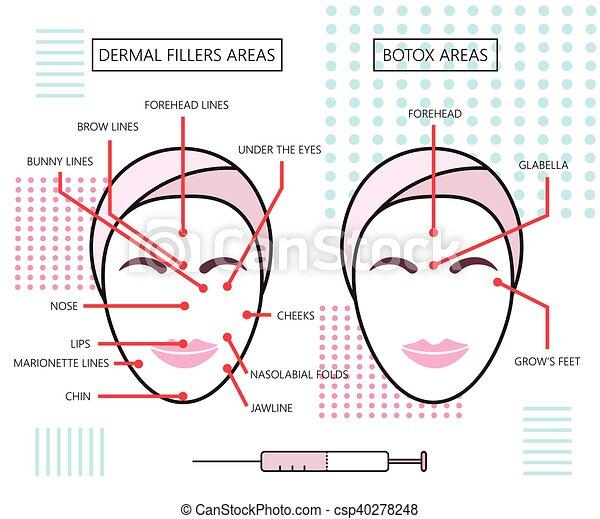 Un póster infogratico sobre rellenos dermales y botox. Inyecciones. Cosmetología. Belleza. Ilustración de vectores. - csp40278248