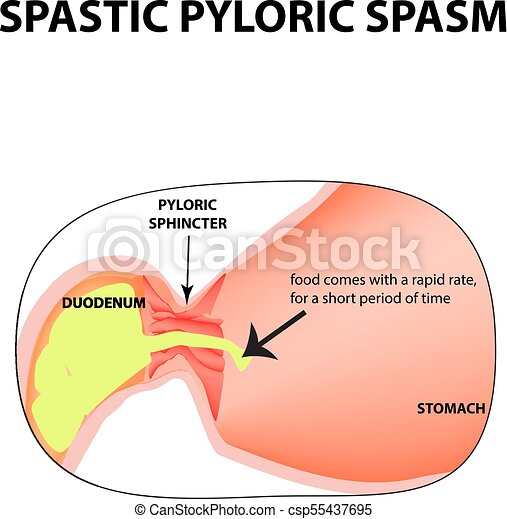 how to stop sphincter spasm