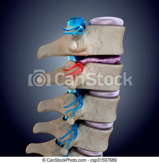 Spinal cord under pressure of bulging disc - csp31597689