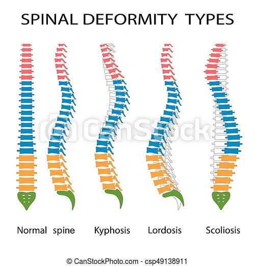 Spinal deformity types. - csp49138911