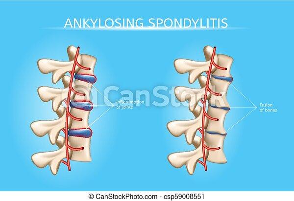 Spine Joints Arthritis Symptoms Vector Infographic