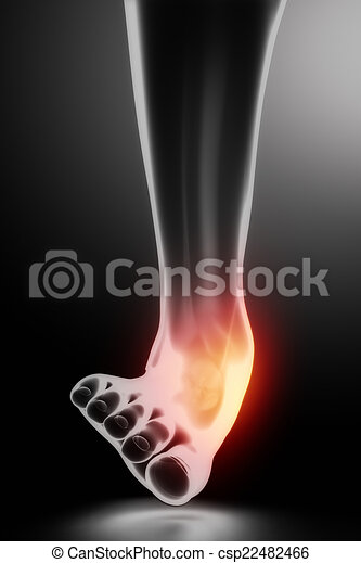 Sprained ankle black x-ray - csp22482466