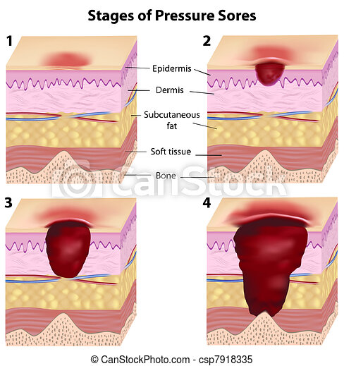 Stages of pressure sores, eps8 - csp7918335
