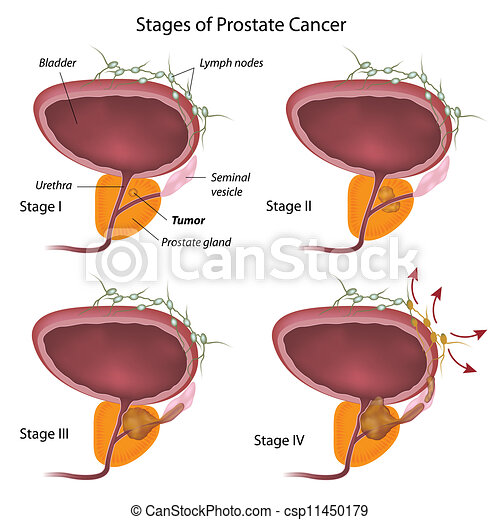 Stages of prostate cancer, eps10 - csp11450179