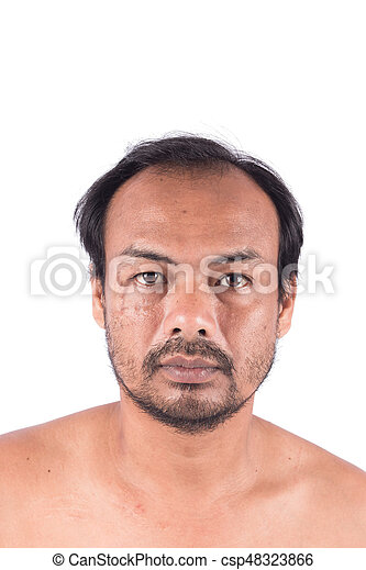 Stitch Scars on the Face and bald head of young man - csp48323866