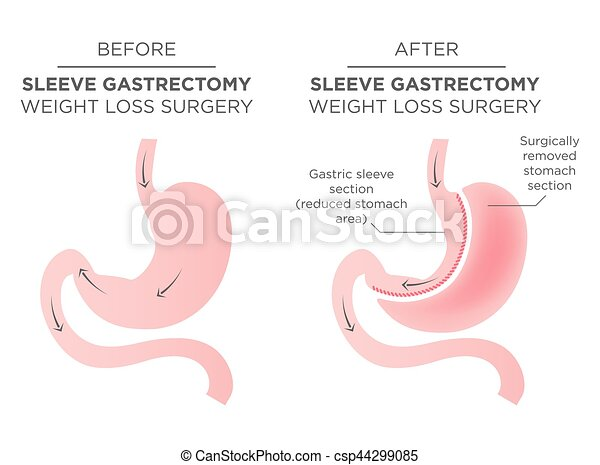 Stomach Staple Bariatric Surgery Resulting in 1/4 of the Stomach Removed. - csp44299085