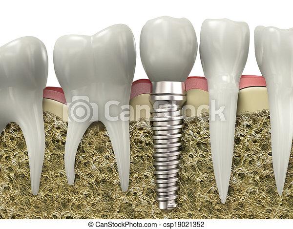 stomatologiczny, wpajać - csp19021352