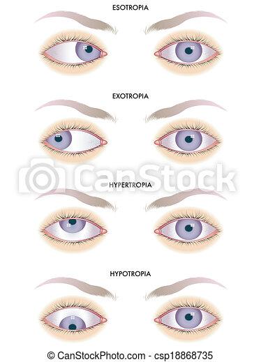 strabismus - csp18868735
