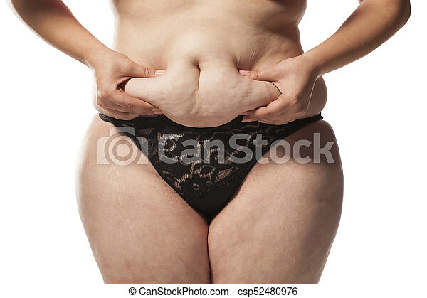 Stretch Marks And Cellulite Fat Woman Pinching Her Stomach On A White Background
