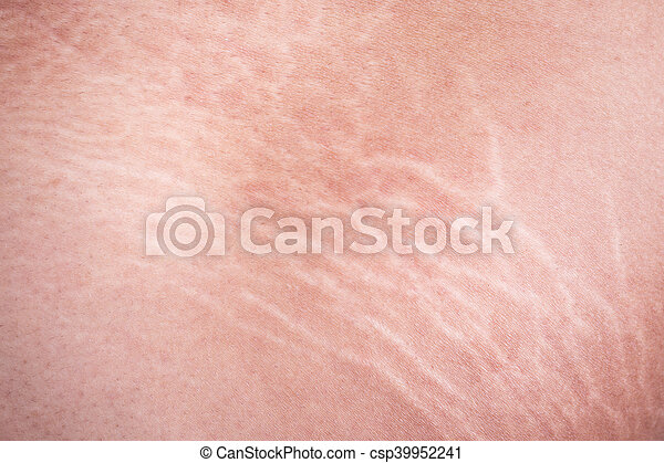 Stretch marks of skin on the thigh - csp39952241