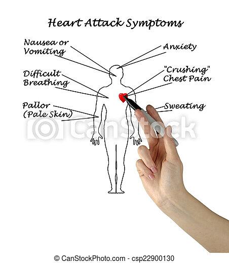 symptômes, crise cardiaque - csp22900130