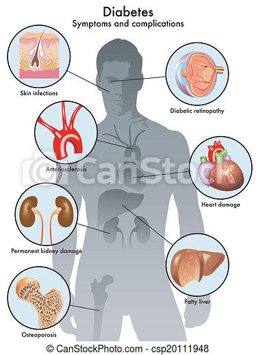 (symptoms, complicación, diabetes - csp20111948