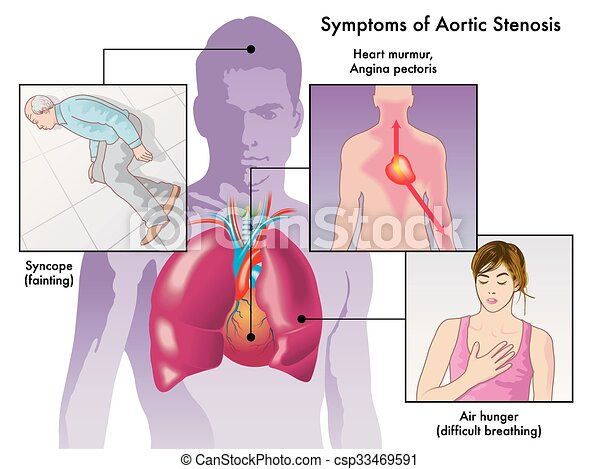 Symptoms Of Aortic Stenosis Medical Illustration Of The Symptoms Of