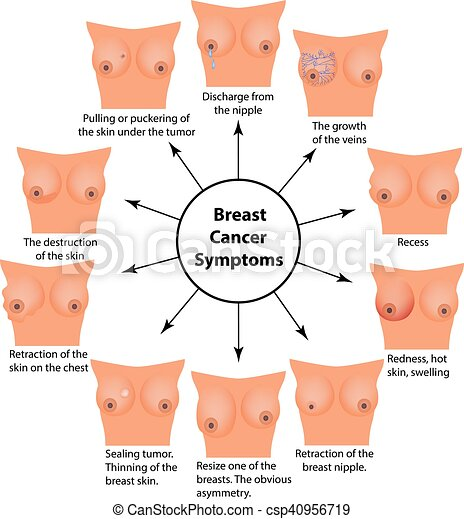 Sysptoms of breast
