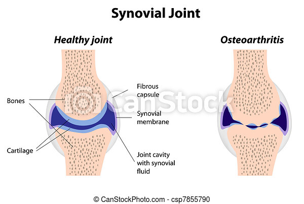 Synovial joint normal and arthritis - csp7855790