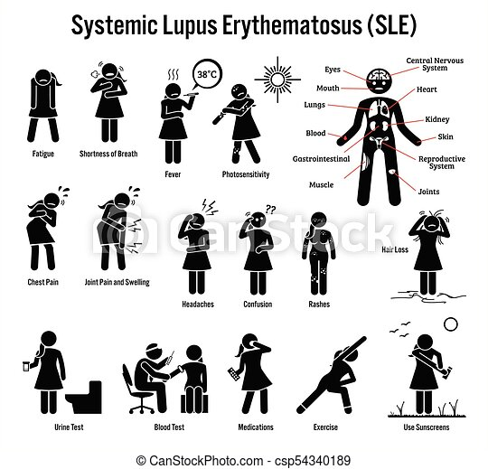 Lupus Diagnosis: When to See a Doctor and What to Expect recommendations