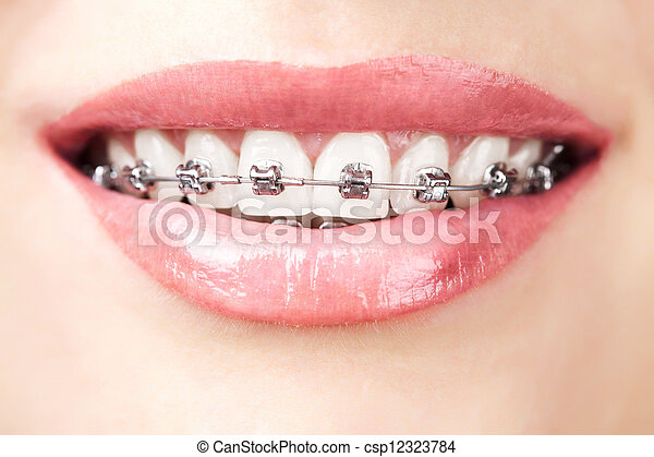 teeth with braces - csp12323784