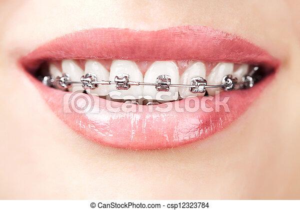teeth with braces - csp12323784