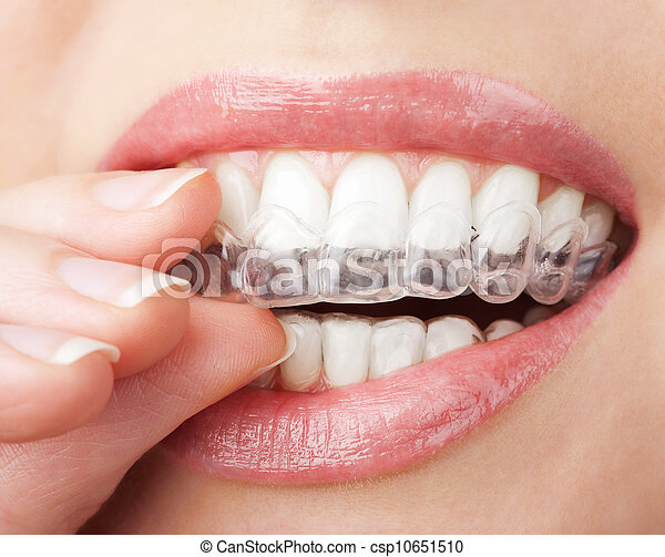 teeth with whitening tray - csp10651510